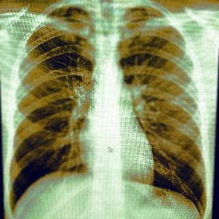Radiology/Рентгенология Чат
